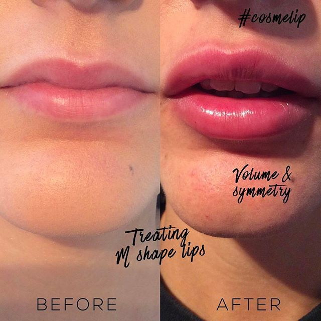 Lip enhancement treatment with dermal fillers