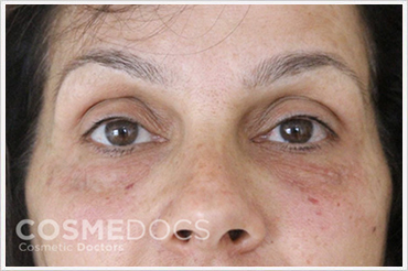 Darma Filler Treatment for Eye Circle After