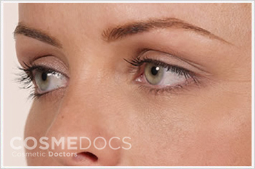 Dark Eye Circle Treatment After