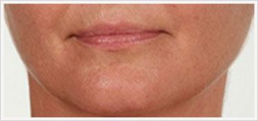Filler Chin Crease treatment After
