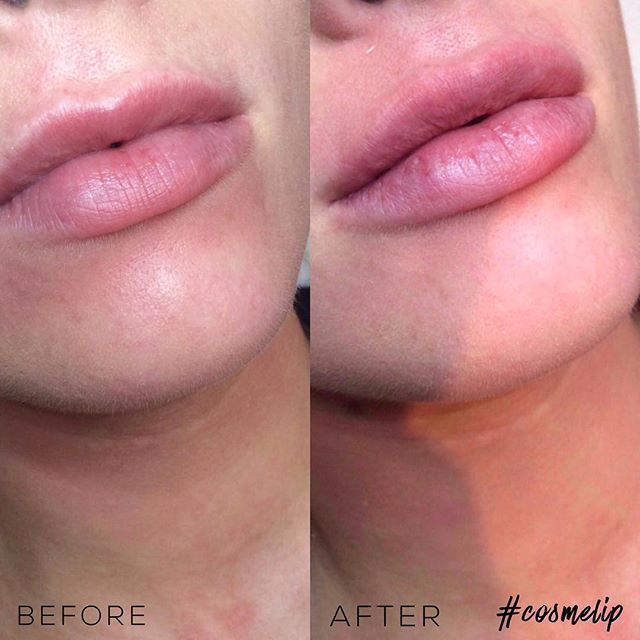 Lip enhancement treatment at Harley Street