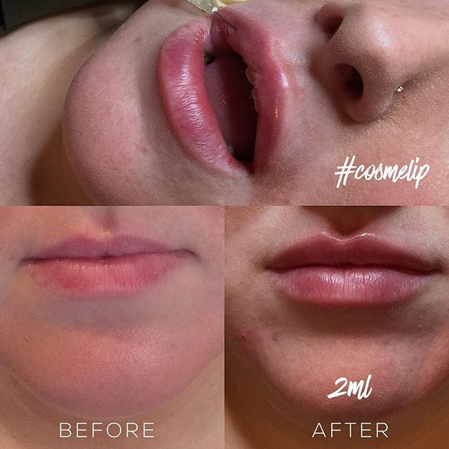 Non invasive lip fillers treatment