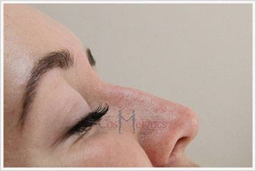 Rhinoplasty Nose Job Treatment before