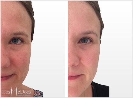 Skin Peel Before after