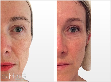 Skin Peel Before After Pictures