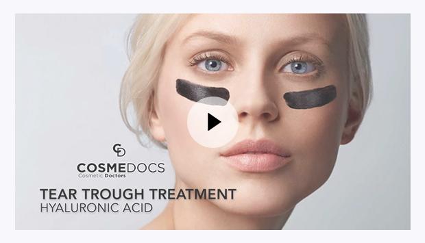 Tear trough filler treatment